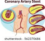 vector illustration of coronary ... | Shutterstock .eps vector #562370686