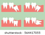 dental cartoon vector  type of... | Shutterstock .eps vector #564417055