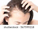 woman serious hair loss problem ... | Shutterstock . vector #567599218