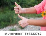 quadrichrome vitiligo is... | Shutterstock . vector #569323762