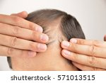 man controls hair loss with... | Shutterstock . vector #571013515
