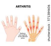 hand with arthritis   Shutterstock . vector #571384606