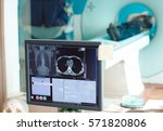 Stock photo mri machine and screens with doctor and nurse 571820806