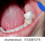 macro of a tooth with amalgam... | Shutterstock . vector #572087275