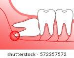 illustration of wisdom teeth... | Shutterstock .eps vector #572357572