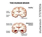 the human brain. cross section. ... | Shutterstock .eps vector #573785056