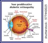 types of diabetic retinopathy ... | Shutterstock .eps vector #577443025