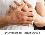 the problem with many people  ...   Shutterstock . vector #580580416