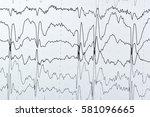 abnormal eeg brain wave on... | Shutterstock . vector #581096665