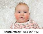 beautiful child allergic rash... | Shutterstock . vector #581154742