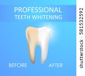 professional teeth whitening ... | Shutterstock .eps vector #581532592