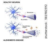 alzheimer's disease is the... | Shutterstock .eps vector #581982592