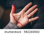 Small photo of bloody hand