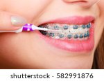 dentist and orthodontist... | Shutterstock . vector #582991876