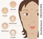 types of acne pimples human... | Shutterstock . vector #583192396