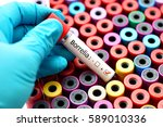blood sample positive with...   Shutterstock . vector #589010336