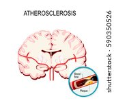 atherosclerosis. cross section... | Shutterstock .eps vector #590350526