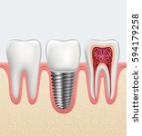 realistic dental implant ... | Shutterstock .eps vector #594179258