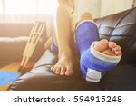 broken leg in a plaster cast... | Shutterstock . vector #594915248