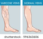 illustration of a healthy leg... | Shutterstock .eps vector #596363606