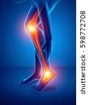 3d illustration of pain in leg | Shutterstock . vector #598772708