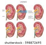 eswl method to crush kidney... | Shutterstock .eps vector #598872695
