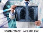 lungs. | Shutterstock . vector #601581152
