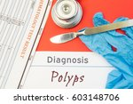 surgical diagnosis of polyps.... | Shutterstock . vector #603148706