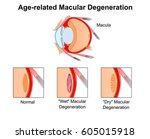 age related macular... | Shutterstock .eps vector #605015918