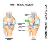 patellar dislocation. normal... | Shutterstock .eps vector #605847365