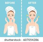 before after set of upset... | Shutterstock .eps vector #607054286