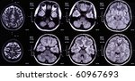 x ray image of the brain... | Shutterstock . vector #60967693