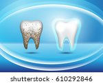 set of 3d realistic dirty and... | Shutterstock .eps vector #610292846