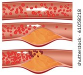 cholesterol plaque in artery ...   Shutterstock .eps vector #61058218