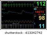 modern electrocardiogram...   Shutterstock . vector #613342742