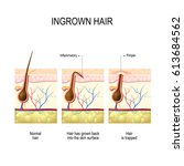 ingrown hair after hair removal ... | Shutterstock . vector #613684562