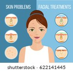 girl with skin problems on her... | Shutterstock .eps vector #622141445