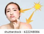 young woman with a bad sunburn... | Shutterstock . vector #622248086