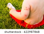 new born with multiple mosquito ... | Shutterstock . vector #622987868
