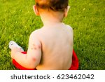 new born with multiple mosquito ... | Shutterstock . vector #623462042