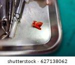 tooth extracted beside dental... | Shutterstock . vector #627138062