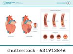 heart attack and... | Shutterstock .eps vector #631913846