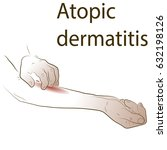 atopic dermatis. the person... | Shutterstock .eps vector #632198126
