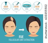 female hair loss treatment with ... | Shutterstock .eps vector #633355502