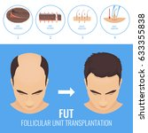 male hair loss treatment with... | Shutterstock .eps vector #633355838
