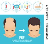 platelet rich plasma injection... | Shutterstock .eps vector #633356375