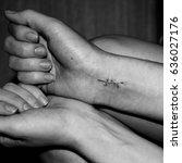 suicide girl. sutured incised...   Shutterstock . vector #636027176