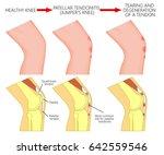 vector illustration of healthy... | Shutterstock .eps vector #642559546