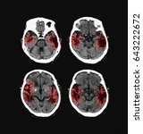 Small photo of Computed tomography (CT scan) of the brain, cerebrovascular accident (CVA) cerebellar infarction at both side