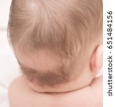 close up of baby bald patch | Shutterstock . vector #651484156